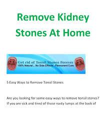 Kidney Stones Meme - kidney stones at home