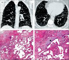 idiopathic pulmonary fibrosis the lancet