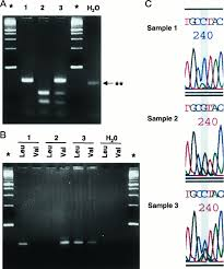 the v89l polymorphism in the 5α reductase type 2 gene and risk of