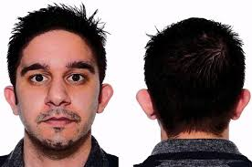 hairstyles for men with sticking out ears man s bat ears problem solved by surgeon ending years of cruel