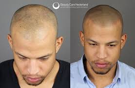 pics of scalp micropigmentation on people with long hair how undetectable is scalp micropigmentation scalp guru