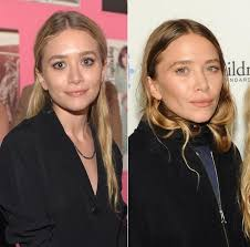 human ken doll before and after mary kate olsen plastic surgery