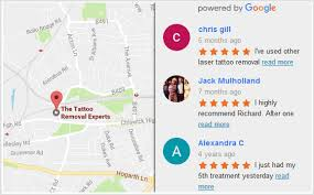 tattoo removal london laser tattoo removal experts
