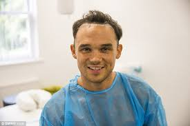 sean coronation street hair tansplant gareth gates shows off the results of his hair transplant daily