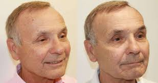 ipl intense pulsed light starlux ipl intense pulsed light shino bay cosmetic dermatology