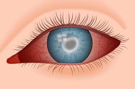 The Blind Spot In The Eye Is Due To Acanthamoeba Keratitis Info For Contact Lens Wearers