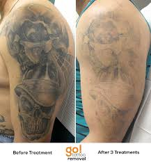 tattoo removal shoulder with 3 laser tattoo removal treatments done most of the grey wash