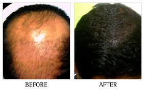 fut hong kong hair transplant cheapest hair transplantation clinic in bangalore in jayanagar
