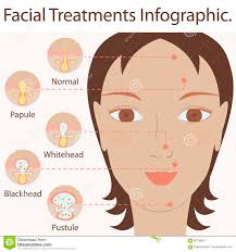 Face Mapping Pimples Types Of Acne Pimples Stock Vector Image 85138653