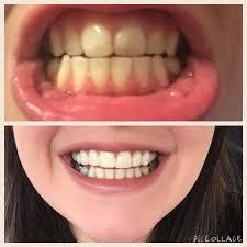 turmeric for teeth whitening