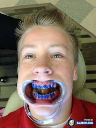 Boy With Braces Meme - 27 pictures of people with funny teeth braces bajiroo com