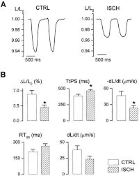 cellular mechanisms of contractile dysfunction in hibernating