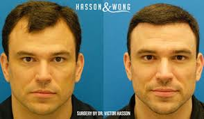 hair plugs for men some of our favourite transformations hasson wong