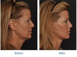 hairstyles that cover face lift scars facelift new jersey