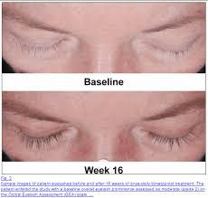 does hairburst work the best eyelash growth serum become a lash goddess 2017 edition