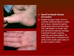 itchy bumps on hands that spread rashes when to worry
