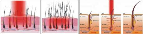 low level light therapy hair professional factory low level laser therapy diode laser hair