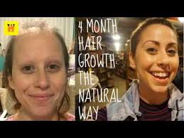 hairstyle for when hair grows back after chemo tips to regrowth your hair after chemo youtube