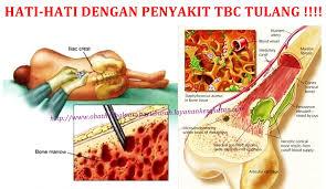 Obat Tbc obat tradisional tbc tulang paling uh obat herbal paru paru