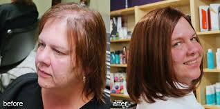 hair weaves for thinning hair hair loss treatment for women in minnetonka mn thinning hair