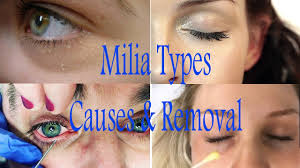 white spots under eyes milia treatment at home youtube