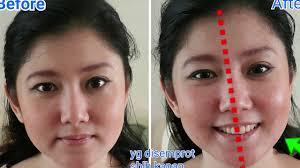Ecer Collagen Spray Msi sensasi menggunakan magic collagen spray