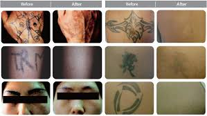 tattoo removal lutronic