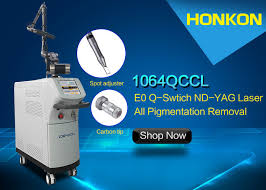 pigmented lesions picosecond laser tattoo removal machine 12 1