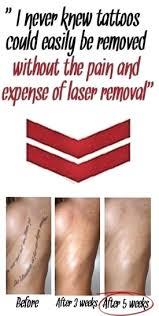 tattoo removal light shark tank iron blog