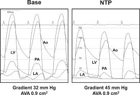 Ava Sessions Hemodynamics In The Cardiac Catheterization Laboratory Of The 21st