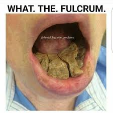 Dental Hygiene Memes - images about whatthefulcrum tag on instagram