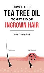 how to remove ingrown hair in thigh diy ingrown hair cream to get rid of nasty red bumps ingrown