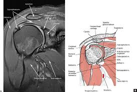 Anatomy Of Shoulder Muscles And Tendons Normal Mri Anatomy Of The Musculoskeletal System Radiology Key