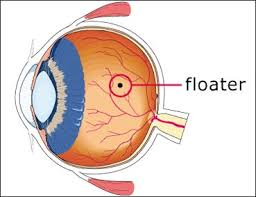 The Blind Spot In The Eye Is Due To Eye Floaters
