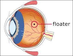 Sudden Blind Spot In Both Eyes Eye Floaters