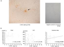 Serum Oxy figure1 the correlations between hepatic 4 hne staining and serum