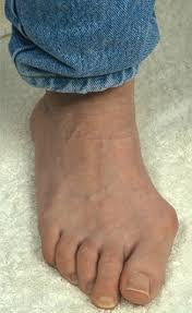 Comfortable High Heels For Bunions Who Needs High Heels Men Get Bunions Too Daily Mail Online