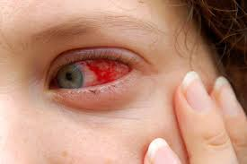 eyes sensitive to light treatment red eyes list of common causes