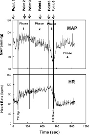 Recoil Table Mechanisms Of Vasovagal Syncope In The Young Reduced Systemic