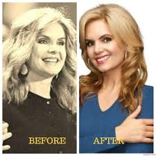scott and amy yancey amy yancey before plastic surgery the best plastic 2017