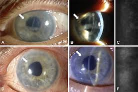 endothelial keratoplasty for bullous keratopathy in eyes with an