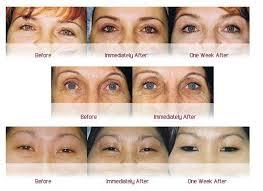 eyeliner tattoo images eyeliner tattoo colour implants of brisbane