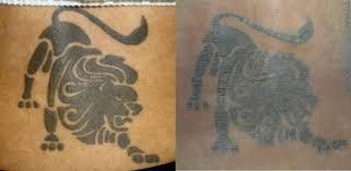 laser tattoo removal vs tattoo removal cream