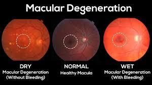 blue light and macular degeneration over exposure to uv and blue light can lead to macular degeneration