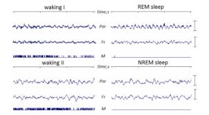 Does A Blind Person Dream Rapid Eye Movement Sleep Wikipedia