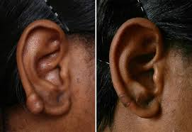 salicylic acid shoo for african american hair african american and ethnic skin dermatology black dermatologist