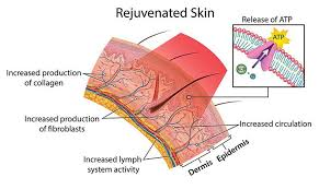 How Does Light Therapy Work Red Light Therapy For Rosacea Treatment Explained