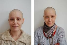 hair growth after chemo pictures when my hair regrew after chemotherapy it felt like getting my