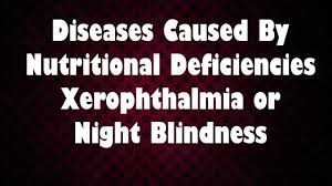 Vitamin A Deficiency Causes Night Blindness Diseases Caused By Nutritional Deficiencies Xerophthalmia Or Night