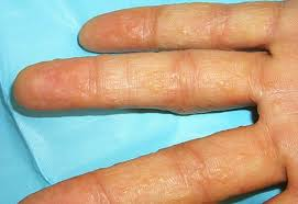 itchy bumps on hands that spread dyshidrotic eczema pictures contagious treatment causes 2018